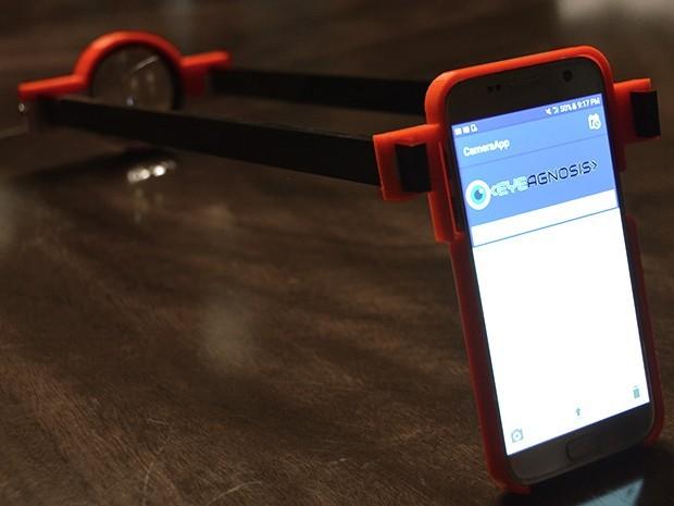Bras imprimé en 3D sur une portable avec l'application Eyegnosis